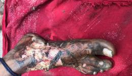 In a slum, a boy with a burned foot was discovered.