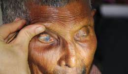 Lepra hat die Hornhaut dieses Patienten geschädigt. Bei einer geplanten Voruntersuchung des Augenhospitals soll geprüft werden, ob eine operative Verbesserung des rechten Auges möglich ist.