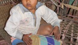 ...dieses Kind hat am Knie Verbrennungen. Auf unserer Reise begegnen wir vielen, vielen Kindern, die sehr leiden und Schmerzen ertragen müssen, denn die Eltern können sich die Medizin nicht leisten.