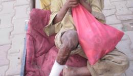 Auf dem Weg zum Taxi kommt ein verwahrloster Mann mit seinen beiden Kindern angeschlürft. Auf seiner alten Holzschubkarre liegt ein Kind mit eingebundenem verbranntem Bein. Er zeigt uns eine Salbe und bittet uns um eine neue, wir kaufen 5 Stück.