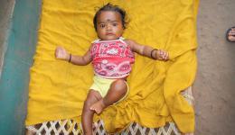 Baby in der Leprakolonie bei Rourkela.