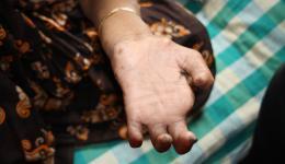 Von Lepra gezeichnete Hand einer Frau, die kaum mehr funktionsfähig ist. Bei unserem letzten Indienaufenthalt fragten wir Dr. Abraham, was sie am Dringendsten brauchen würden. Er meinte, eine Waschmaschine, um die hygienischen Verhältnisse zu verbessern.
