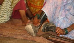 12.07.11, Leprazentrum, 40 km von Delhi - Das Foto zeigt das künstliche Bein und die Hände einer alten Frau. Durch die Lepra sind ihre Extremitäten verstümmelt. An der rechten Hand hat sie keine Finger mehr.