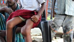 Dieses Mädchen hat seit einigen Monaten eine Entzündung mit Wasseransammlungen im Knie, was von wiederholten Fieberanfällen begleitet wird.