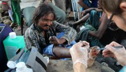 Ein leprabetroffener Mann. Schmerzen spürt er bei der Behandlung keine, denn die Lepra verursacht den Verlust der Sensibilität in den Gliedmaßen.