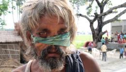 Bei seinem sechs-monatigem Krankenhausaufenthalt in Delhi wurde zusätzlich zur Nase auch noch das Bein des Mannes abgenommen. An Gewicht nahm er, durch das bessere Essen im Krankenhaus, etwas zu, doch seine kleine Hütte ist zusammengeklappt.