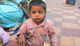 Auch dieses Kind hat Probleme mit einem Auge.