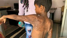 Dieser Junge wurde vor längerer Zeit bei einem Küchenunfall verbrüht. Eine Operation soll die Verwachsungen lindern und die Bewegungsfreiheit für seinen linken Arm verbessern...