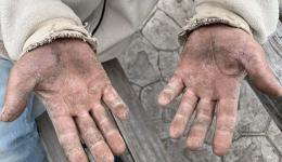 Die Hände von Ramush...